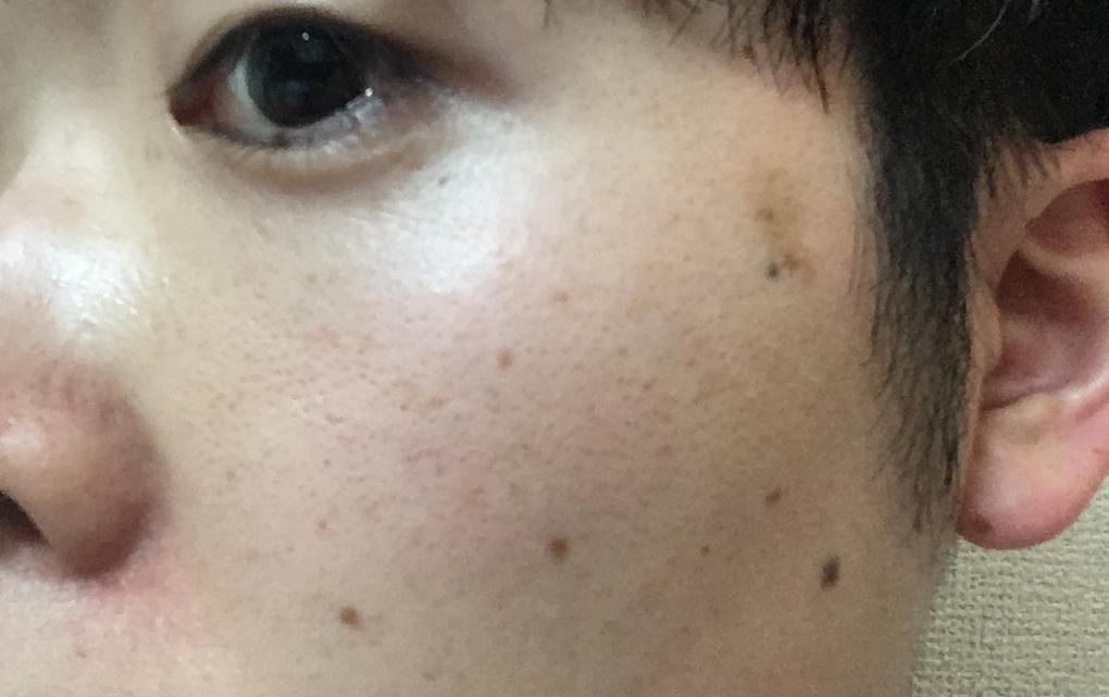 湘南美容外科フォトRF施術前の写真