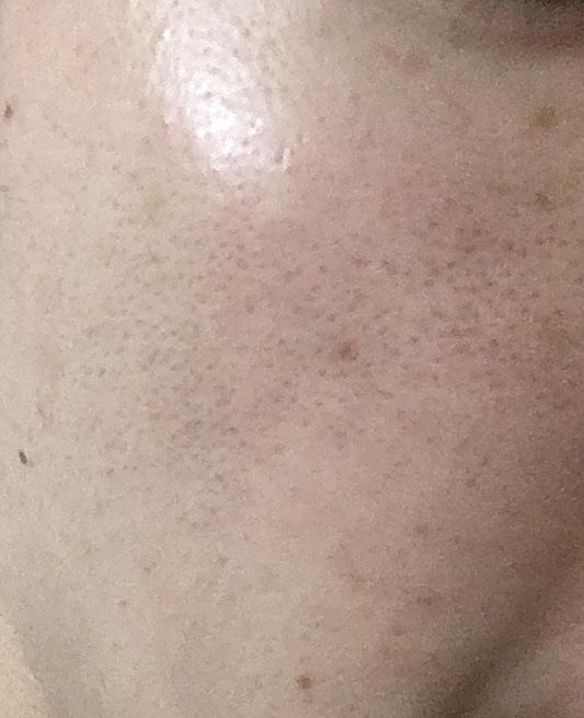 湘南美容外科フォトRF施術前の写真メンズ肌