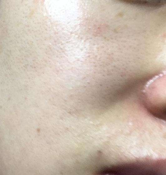 湘南美容外科フォトRF施術後の写真メンズ肌