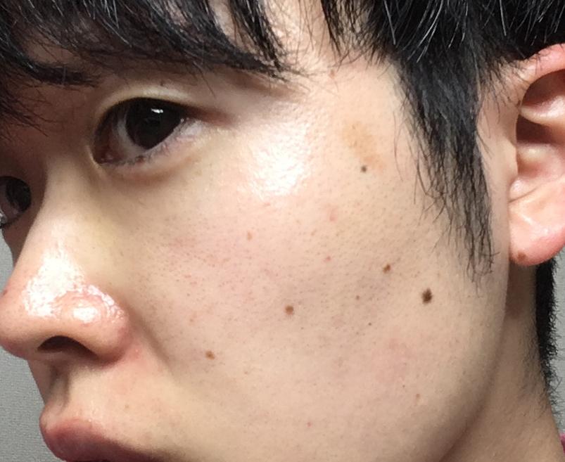 湘南美容外科フォトRF施術後の写真メンズ顔面